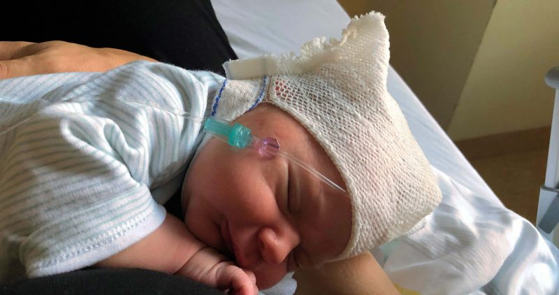 Neugeborenes bei Antibiotikainfusion über den Kopf